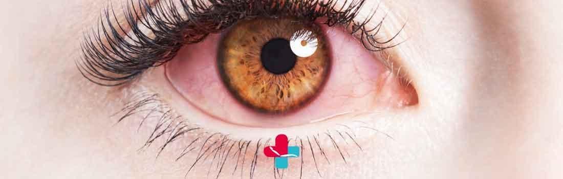 Occhio arrossato: 5 buoni motivi per affidarsi a uno specialista