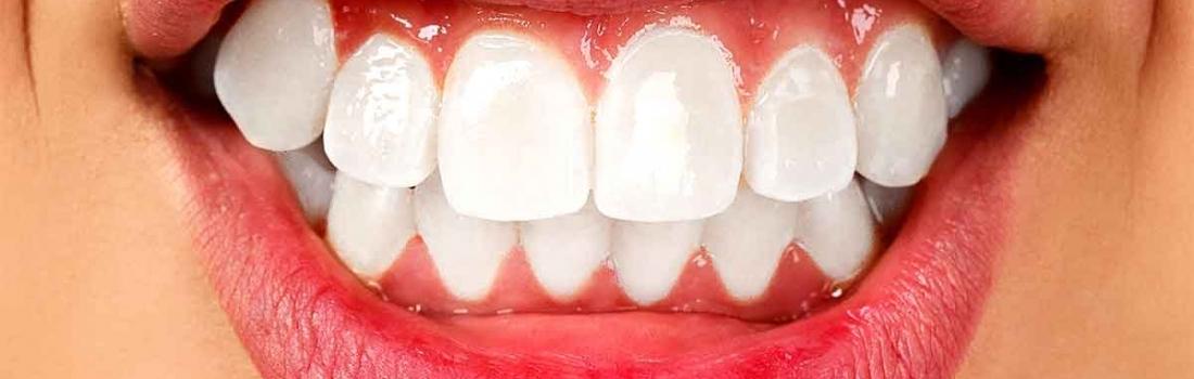 Bruxismo: a denti stretti