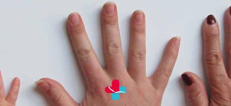 Problemi alle unghie: come capire, davvero, se qualcosa non va